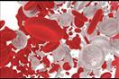 دراسة تكشف وجود جينات تساهم في الوقاية من سرطان الدم