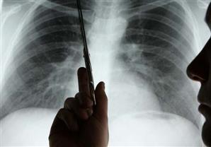ألم الظهر والكتف قد يكون علامة على سرطان الرئة