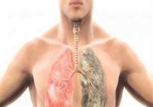 منها فقدان الوزن غير المبرر.. أعراض غير متوقعة لسرطان الرئة