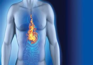 باحثون يكشفون عن جهاز دقيق يساهم في علاج حرقة المعدة