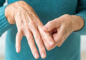 علامة في الأصابع تكشف إصابتك بالتهاب المفاصل الروماتويدي