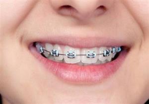 تقويم الأسنان بالليزر.. إليك مميزاته وعيوبه