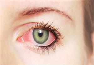 """كيف يهدد """"كوفيد-19"""" صحة العيون؟.. طبيبة تجيب"""