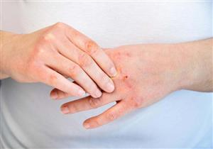 5 طرق تعزز مناعة مريض الصدفية في الشتاء (صور)