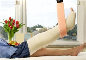 7 طرق بسيطة تساعد على التئام العظام.. قد تسرع شفاء الكسور