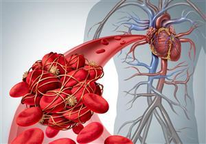 تشبه الشد العضلي.. علامات تشير لوجود جلطة دموية