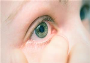 طبيب عيون يكشف خطورة التهاب الملتحمة ومدى تأثيره على الرؤية
