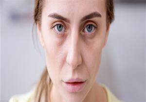 5 مشكلات صحية تظهر أعراضها على الوجه.. منها اضطرابات الغدة الدرقية