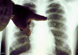 منها الحمى.. علامات غير متوقعة تشير للإصابة بسرطان الرئة