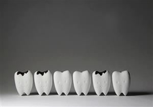 5 مضاعفات خطيرة يسببها التسوس.. منها تكسير الأسنان
