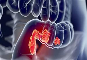 دليلك للوقاية من سرطان القولون والمستقيم (صور)