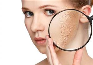 4 عادات يومية تحميك من الأمراض الجلدية في الشتاء (إنفوجرافيك)