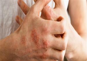 لمصابي الإكزيما.. قائمة بأفضل وأسوأ الأطعمة التي يمكن تناولها