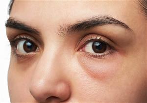 10 طرق طبيعية للتخلص من أكياس العين.. تعرف عليها (صور)