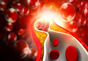 دراسة: عقار شهير لخفض الكوليسترول يقلل من خطر الوفاة المبكرة
