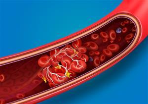 كوفيد-19.. باحثون: الفيروس يسبب جلطات دموية نادرة أكثر من اللقاحات الحالية