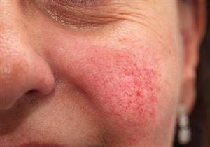 مرض جلدي مزمن.. 7 أعراض تكشف إصابتك بالعد الوردي