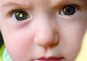 مرض كوتس يهدد طفلِك بالعمى.. 5 أعراض تكشف الإصابة به