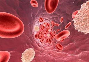 يسبب النزيف الشديد.. أسباب كثرة الصفيحات الدموية وأبرز أعراضها