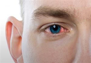 6 نصائح للوقاية من التهابات العين.. منها تنظيف شاشة الهاتف (صور)