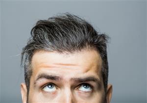 ينذر ببعض الأمراض.. 5 أسباب وراء ظهور الشيب المبكر