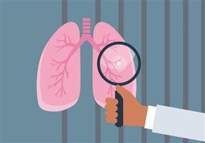 انتبه لها.. 6 علامات تنذرك بسرطان الرئة
