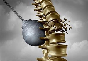 أسباب متعددة للإصابة بهشاشة العظام.. دليلك لتجنبها