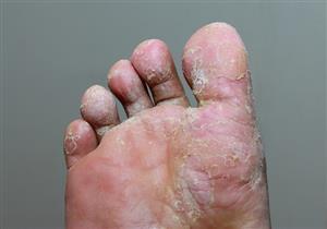 أعراضها مزعجة.. 5 طرق فعالة تحميك من الإصابة بفطريات القدم