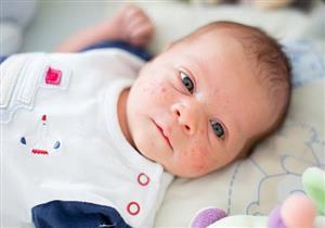 ما أسباب ظهور حبوب الوجه عند الأطفال والرضع؟.. إليك طرق العلاج