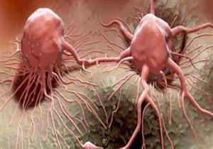 علماء يحددون السبب وراء ارتفاع أعداد المصابين بالسرطان