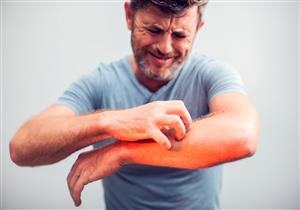 طبيبة تحذر: تشقق الجلد في هذه المنطقة قد تشير إلى حالات مرضية خطيرة