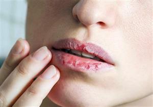 قد تسببها الأطعمة الساخنة.. 5 طرق طبيعية لعلاج حروق الشفاه (صور)