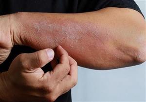 دراسة جديدة تكشف أعراض لا تتوقعها للإصابة بكورونا