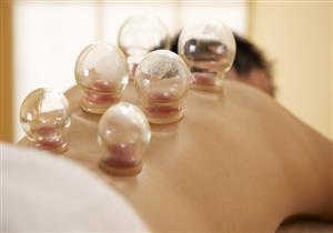 هل تساعد الحجامة في تخفيف حدة نوبات الصداع النصفي؟