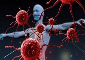 علامة في الجسم تكشف إصابتك بالسرطان