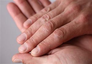 """ينذر بالإصابة بسرطان الرئة.. 5 مراحل لحدوث """"تعجر الأصابع"""""""