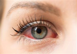 أعراضهما متشابهة.. طبيب يوضح الفرق بين جفاف وحساسية العين