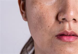 تعانين منها في فصل الصيف؟.. 5 نصائح للوقاية من التصبغات الجلدية