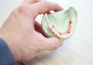 5 عادات شائعة تؤدي إلى تسوس الأسنان.. منها التظيف المفرط بالفرشاة