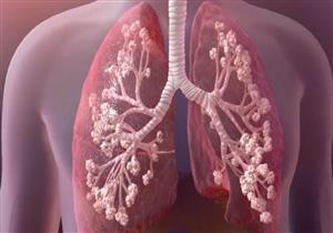 يهدد الحياة .. إليك أعراض ومضاعفات مرض التليف الكيسي