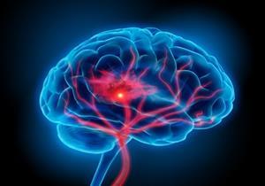 7 علامات مرضية تستدعي زيارة الطبيب.. تنذرك بنزيف المخ