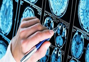 كيف يمكن أن يؤثر كورونا على الدماغ؟.. علماء يوضحون أضراره