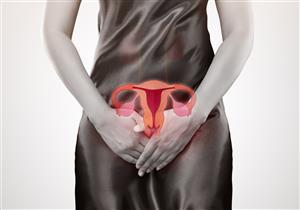 5 أعراض تكشف إصابتِك بسرطان بطانة الرحم.. إليكِ أسبابه وطرق علاجه