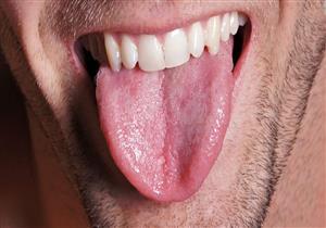 التهاب اللسان قد يدل على نقص فيتامين 12B.. كيف تكتشف ذلك؟