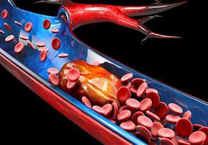 7 أعراض صامتة لتجلط الدم (صور)