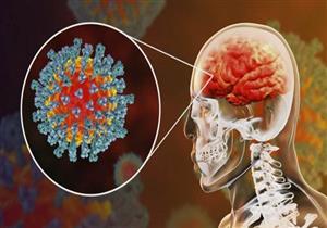 دراسة صادمة: الناجون من كورونا قد يعانون فقدان أنسجة المخ
