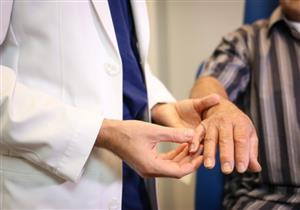 أطباء: علامة في اليد قد تكون من الأعراض الأولية للسرطان