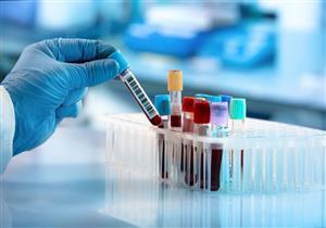 هل يكشف الإصابة بكورونا؟.. 3 حالات قد تستدعي إجراء تحليل CRP