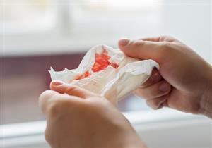7 أسباب لنزول دم من الأنف مع المخاط.. متى يستدعي زيارة الطبيب؟