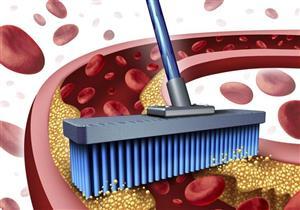 الكوليسترول الضار يهدد صحة قلبك.. مكملات غذائية تخفض نسبته بالدم